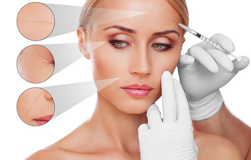 Bottox and fillers