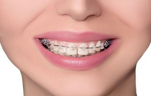 Orthodontics-Braces