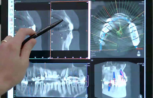 Come diagnostichiamo. Immagini panoramiche. 3D scanner