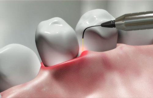 Contemporary, intelligent, athletic dental laser treatment. Laser brightening