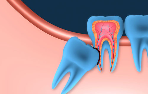Oral surgery. Impacted wisdom tooth